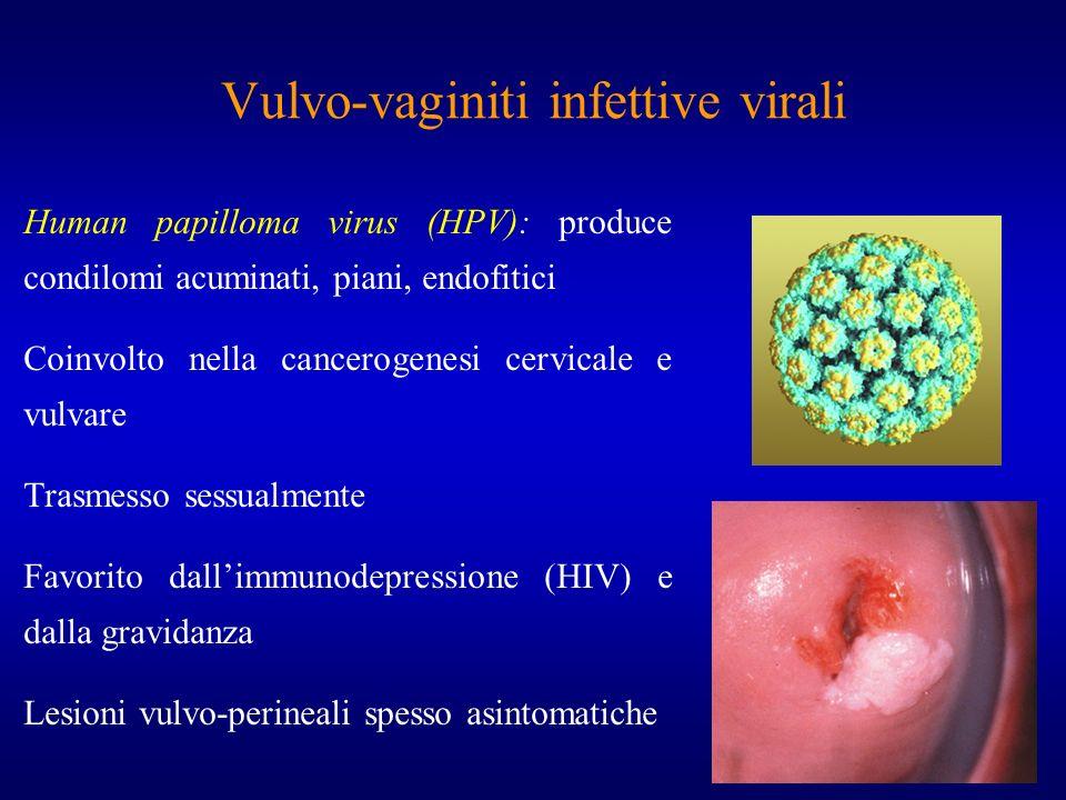 Vulvo-vaginiti infettive virali Human papilloma virus (HPV): produce condilomi acuminati, piani, endofitici Coinvolto nella cancerogenesi cervicale e