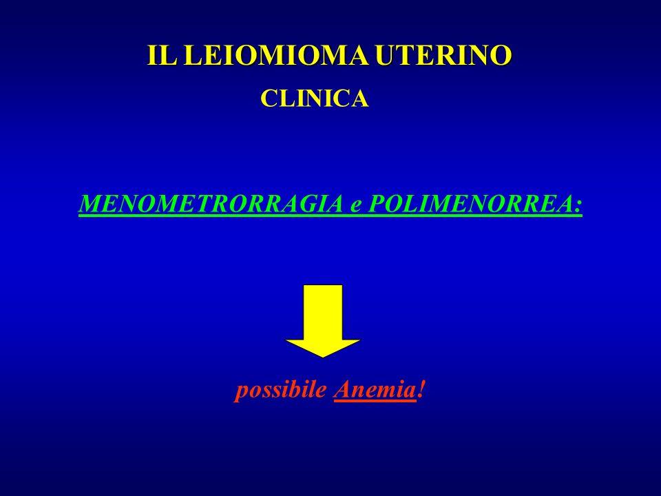 MENOMETRORRAGIA e POLIMENORREA: possibile Anemia! IL LEIOMIOMA UTERINO CLINICA