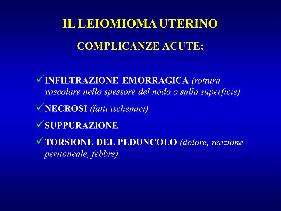 COMPLICANZE ACUTE: INFILTRAZIONE EMORRAGICA (rottura vascolare nello spessore del nodo o sulla superficie) NECROSI (fatti ischemici) SUPPURAZIONE TORS