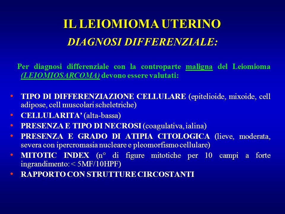 Per diagnosi differenziale con la controparte maligna del Leiomioma (LEIOMIOSARCOMA) devono essere valutati: TIPO DI DIFFERENZIAZIONE CELLULARE (epite