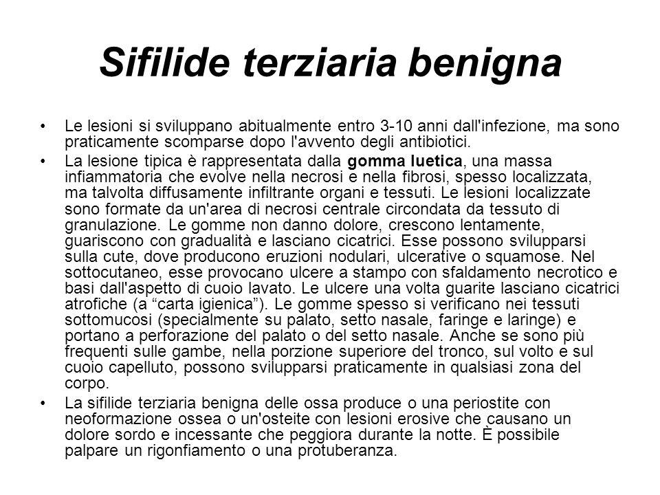 Sifilide terziaria benigna Le lesioni si sviluppano abitualmente entro 3-10 anni dall infezione, ma sono praticamente scomparse dopo l avvento degli antibiotici.