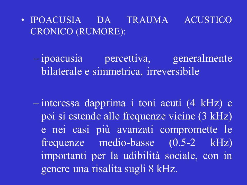 IPOACUSIA DA TRAUMA ACUSTICO CRONICO (RUMORE): –ipoacusia percettiva, generalmente bilaterale e simmetrica, irreversibile –interessa dapprima i toni a