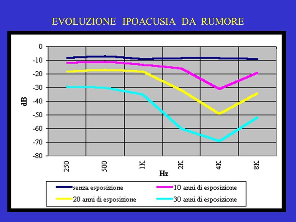 EVOLUZIONE IPOACUSIA DA RUMORE
