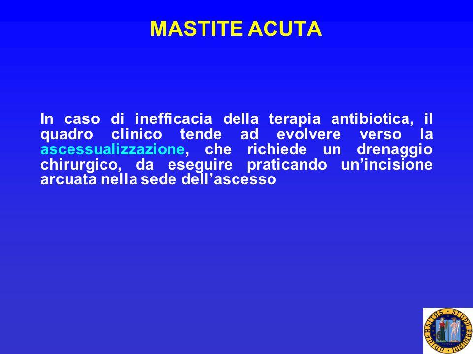 MASTITE ACUTA In caso di inefficacia della terapia antibiotica, il quadro clinico tende ad evolvere verso la ascessualizzazione, che richiede un drena