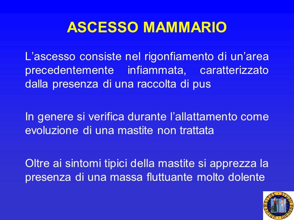 ASCESSO MAMMARIO Lascesso consiste nel rigonfiamento di unarea precedentemente infiammata, caratterizzato dalla presenza di una raccolta di pus In gen
