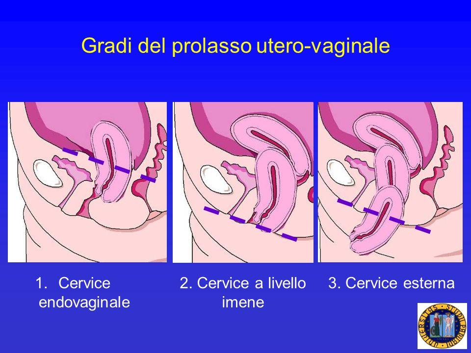 Gradi del prolasso utero-vaginale 1.Cervice endovaginale 2. Cervice a livello imene 3. Cervice esterna