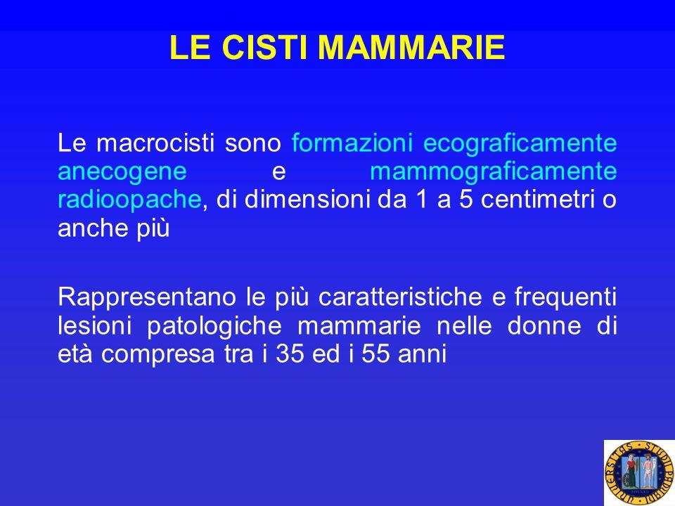 LE CISTI MAMMARIE Le macrocisti sono formazioni ecograficamente anecogene e mammograficamente radioopache, di dimensioni da 1 a 5 centimetri o anche p