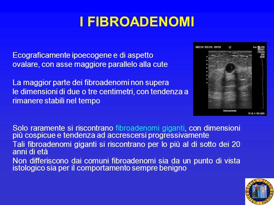 I FIBROADENOMI Ecograficamente ipoecogene e di aspetto ovalare, con asse maggiore parallelo alla cute La maggior parte dei fibroadenomi non supera le