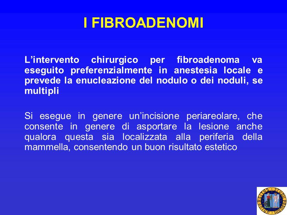 I FIBROADENOMI Lintervento chirurgico per fibroadenoma va eseguito preferenzialmente in anestesia locale e prevede la enucleazione del nodulo o dei no