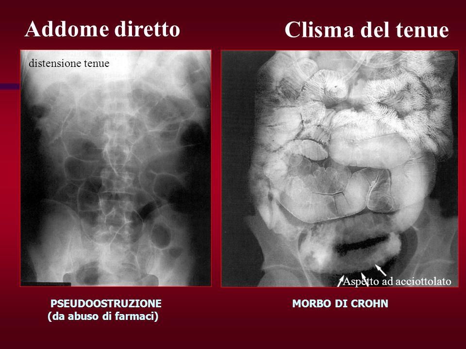Clisma del tenue Aspetto ad acciottolato Addome diretto PSEUDOOSTRUZIONE (da abuso di farmaci) MORBO DI CROHN distensione tenue