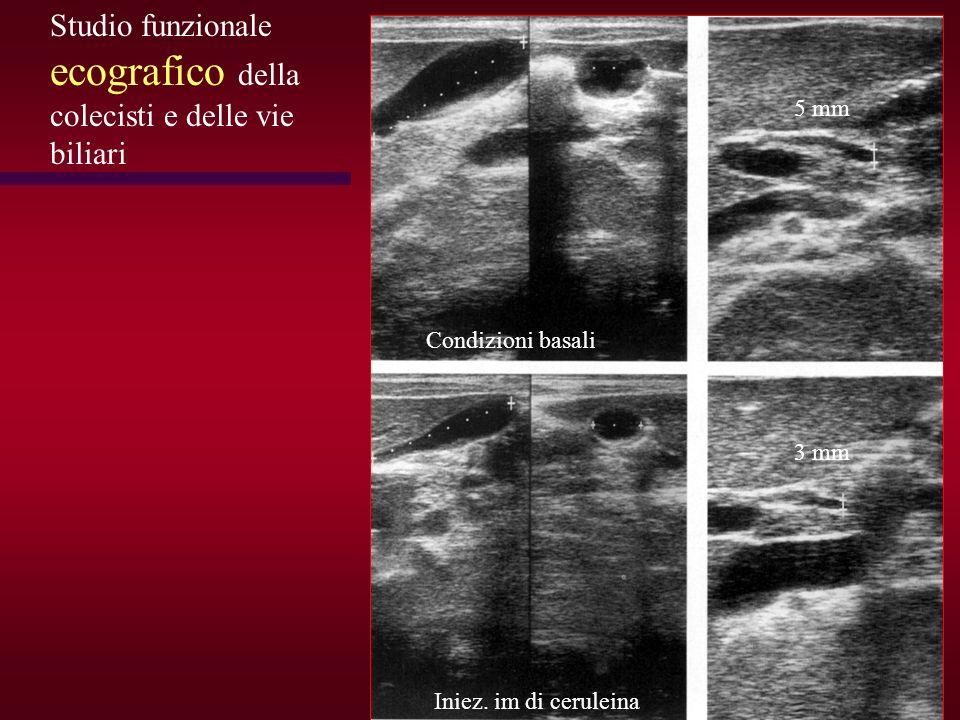 Condizioni basali Iniez. im di ceruleina 5 mm 3 mm Studio funzionale ecografico della colecisti e delle vie biliari