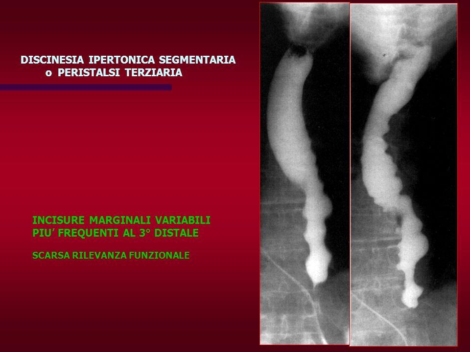 DISCINESIA IPERTONICA SEGMENTARIA o PERISTALSI TERZIARIA INCISURE MARGINALI VARIABILI PIU FREQUENTI AL 3° DISTALE SCARSA RILEVANZA FUNZIONALE