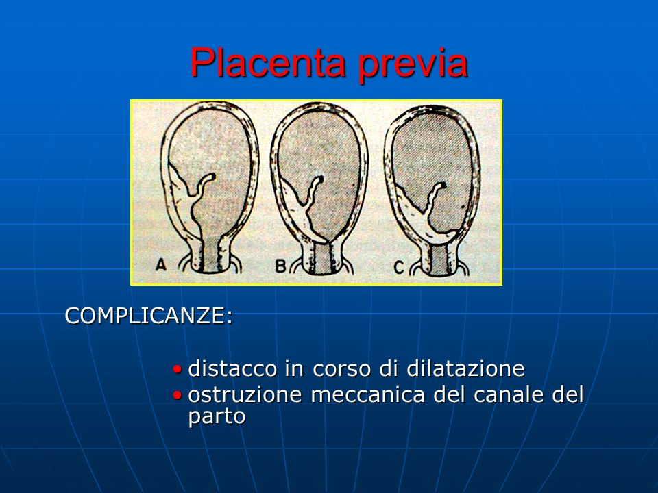 Placenta previa COMPLICANZE: distacco in corso di dilatazione ostruzione meccanica del canale del parto