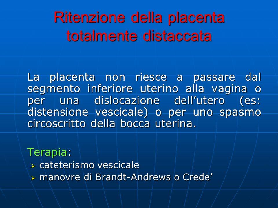 Ritenzione della placenta totalmente distaccata La placenta non riesce a passare dal segmento inferiore uterino alla vagina o per una dislocazione dellutero (es: distensione vescicale) o per uno spasmo circoscritto della bocca uterina.