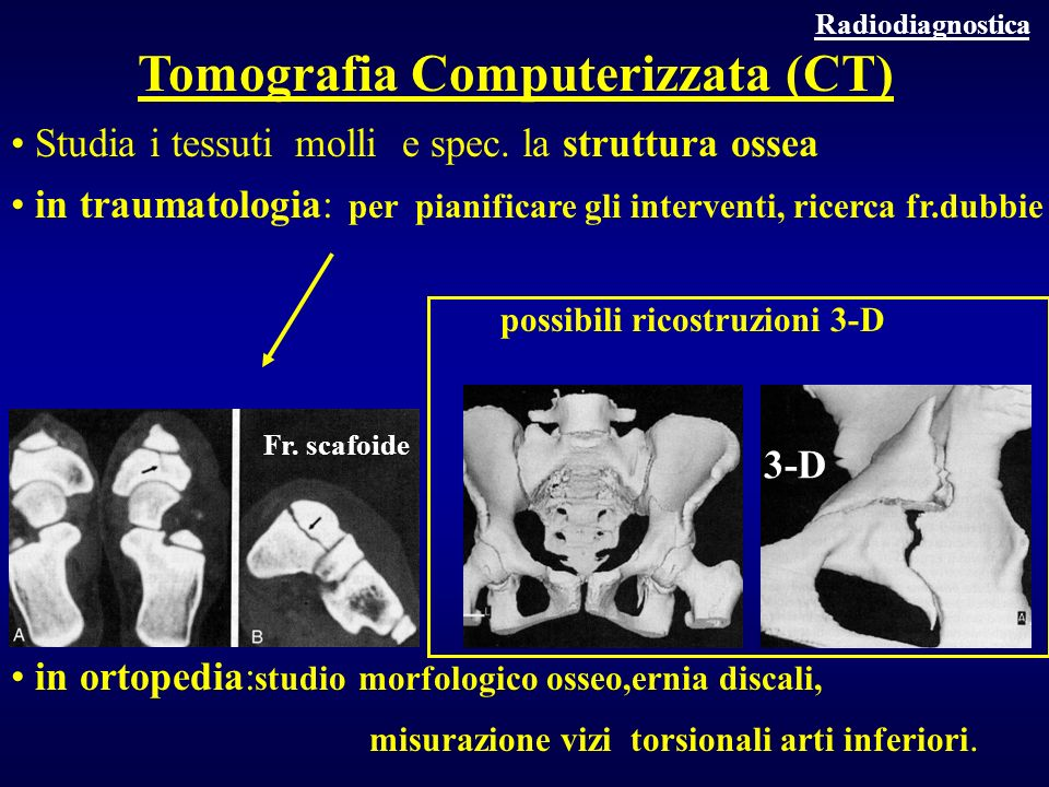 Studia i tessuti molli e spec. la struttura ossea in traumatologia: per pianificare gli interventi, ricerca fr.dubbie possibili ricostruzioni 3-D in o