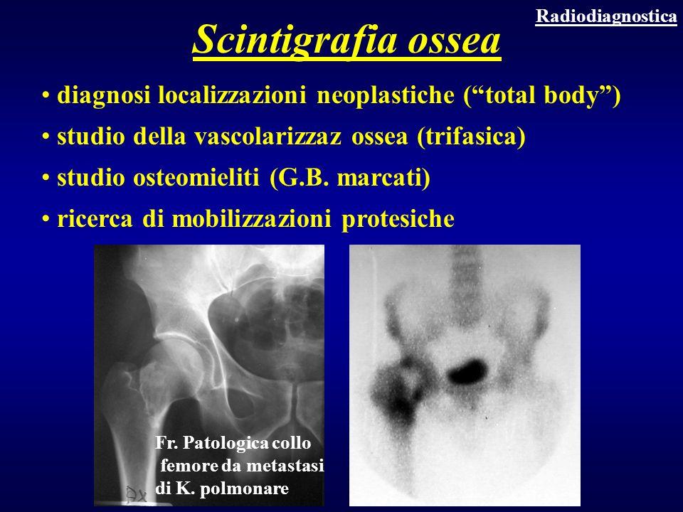 diagnosi localizzazioni neoplastiche (total body) studio della vascolarizzaz ossea (trifasica) studio osteomieliti (G.B. marcati) ricerca di mobilizza
