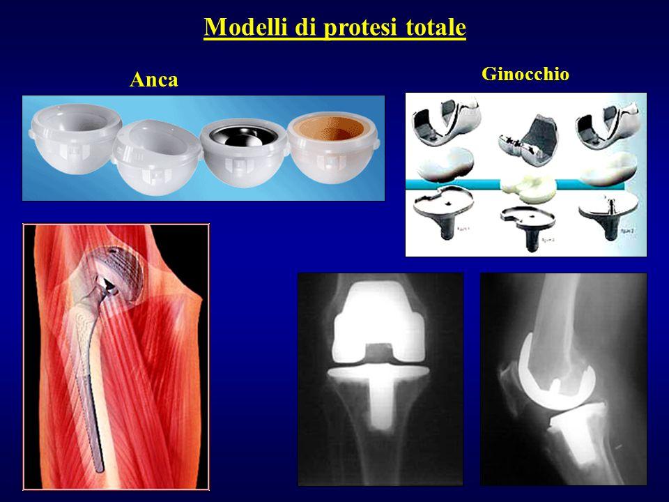 Modelli di protesi totale Anca Ginocchio