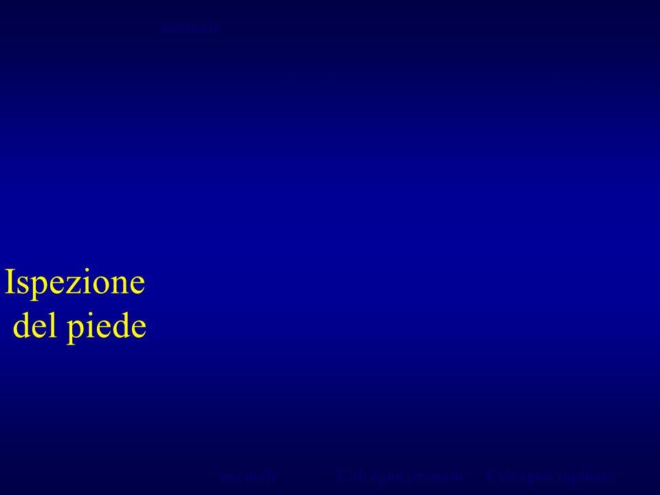 INTERVENTI SULLOSSO OSTEOTOMIA: sezione di un segmento osseo allo scopo di correggere lasse.