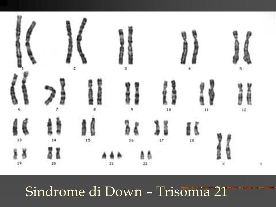 Sindrome di Down – Trisomia 21