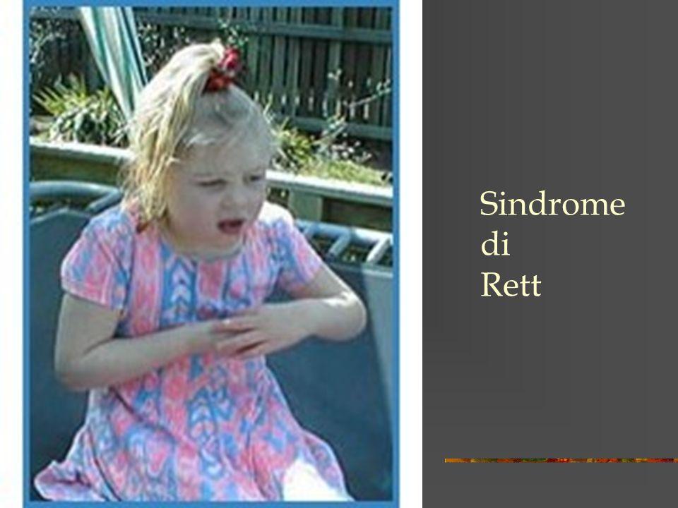 Sindrome di Rett