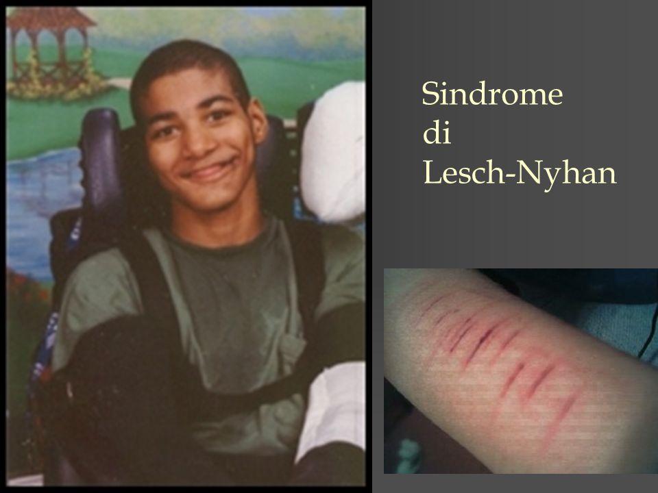 Sindrome di Lesch-Nyhan