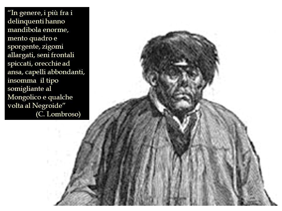 In genere, i più fra i delinquenti hanno mandibola enorme, mento quadro e sporgente, zigomi allargati, seni frontali spiccati, orecchie ad ansa, capel