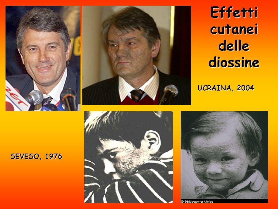 Effetti cutanei delle diossine UCRAINA, 2004 SEVESO, 1976