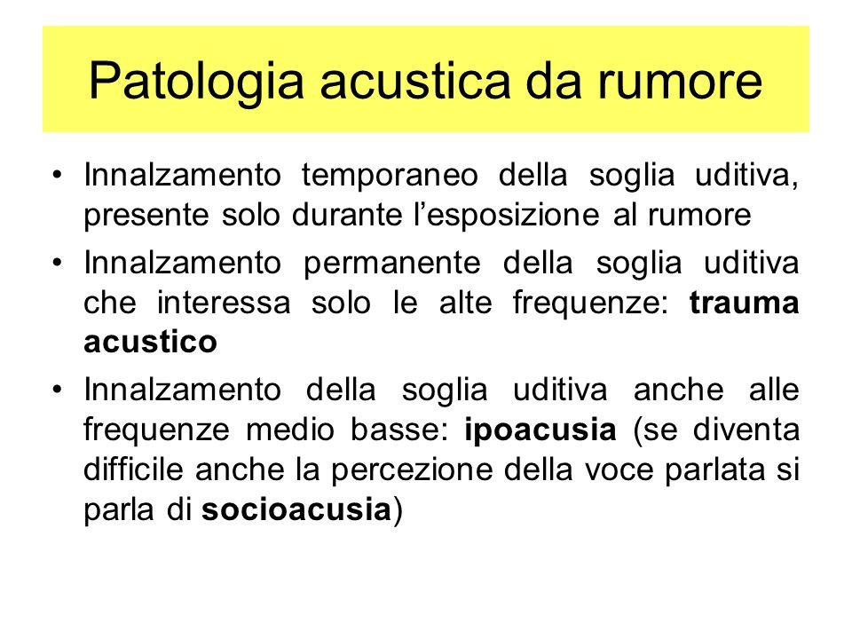 Patologia acustica da rumore Innalzamento temporaneo della soglia uditiva, presente solo durante lesposizione al rumore Innalzamento permanente della