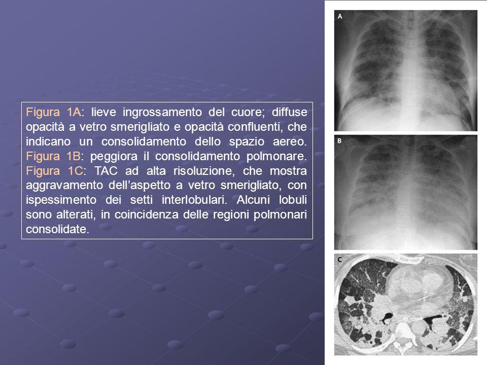10 Figura 1A: lieve ingrossamento del cuore; diffuse opacità a vetro smerigliato e opacità confluenti, che indicano un consolidamento dello spazio aer