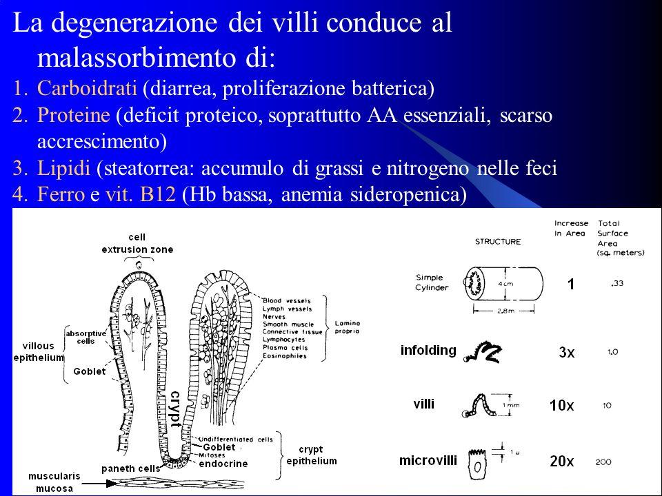 15 La degenerazione dei villi conduce al malassorbimento di: 1.Carboidrati (diarrea, proliferazione batterica) 2.Proteine (deficit proteico, soprattut