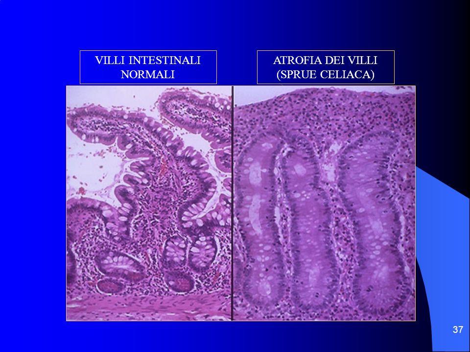 37 VILLI INTESTINALI NORMALI ATROFIA DEI VILLI (SPRUE CELIACA)