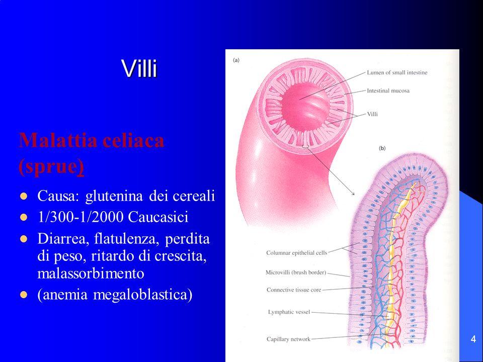 4 Villi Causa: glutenina dei cereali 1/300-1/2000 Caucasici Diarrea, flatulenza, perdita di peso, ritardo di crescita, malassorbimento (anemia megalob