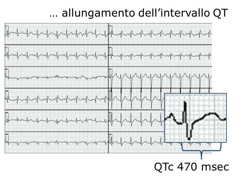 QTc 470 msec … allungamento dellintervallo QT