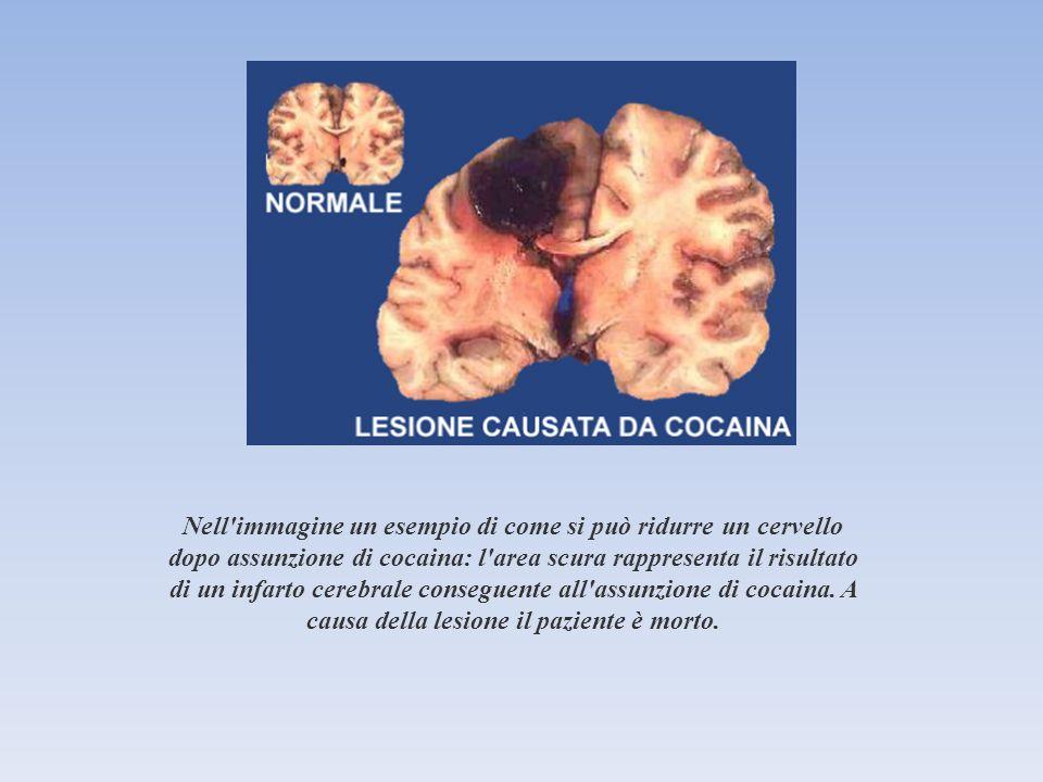 Nell'immagine un esempio di come si può ridurre un cervello dopo assunzione di cocaina: l'area scura rappresenta il risultato di un infarto cerebrale