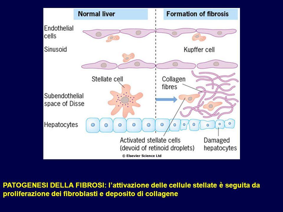 PATOGENESI DELLA FIBROSI: lattivazione delle cellule stellate è seguita da proliferazione dei fibroblasti e deposito di collagene