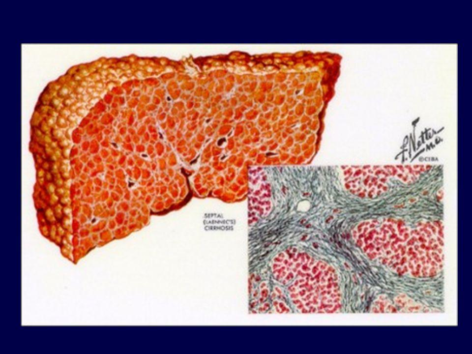La cirrosi trasforma il fegato in una massa dura e nodulare.