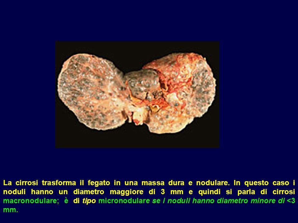 La cirrosi trasforma il fegato in una massa dura e nodulare. In questo caso i noduli hanno un diametro maggiore di 3 mm e quindi si parla di cirrosi m