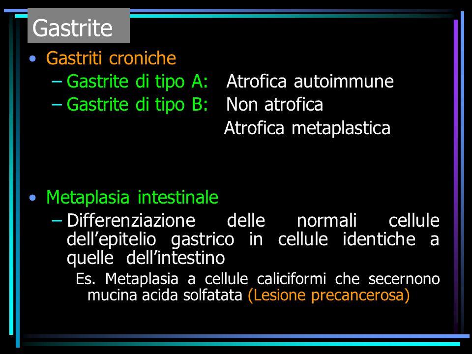 Gastriti croniche –Gastrite di tipo A: Atrofica autoimmune –Gastrite di tipo B: Non atrofica Atrofica metaplastica Metaplasia intestinale –Differenzia