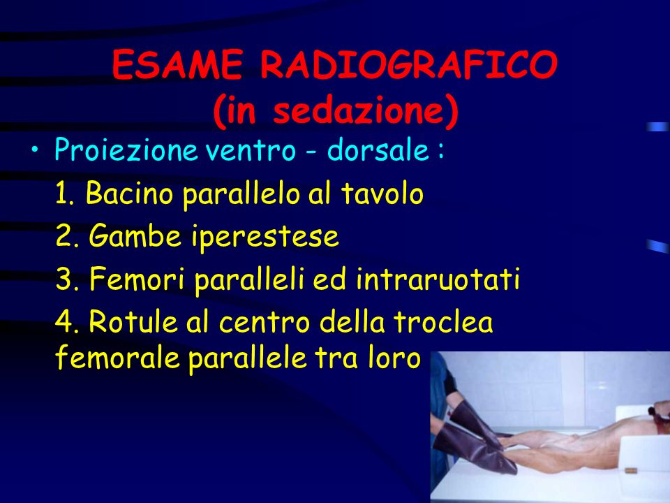 ESAME RADIOGRAFICO (in sedazione) Proiezione ventro - dorsale : 1. Bacino parallelo al tavolo 2. Gambe iperestese 3. Femori paralleli ed intraruotati