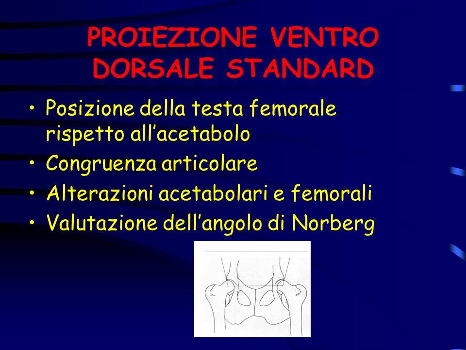 PROIEZIONE VENTRO DORSALE STANDARD Posizione della testa femorale rispetto allacetabolo Congruenza articolare Alterazioni acetabolari e femorali Valut