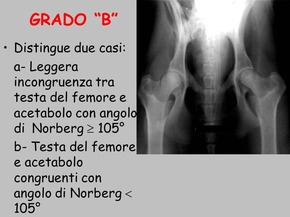 GRADO B Distingue due casi: a- Leggera incongruenza tra testa del femore e acetabolo con angolo di Norberg 105° b- Testa del femore e acetabolo congru