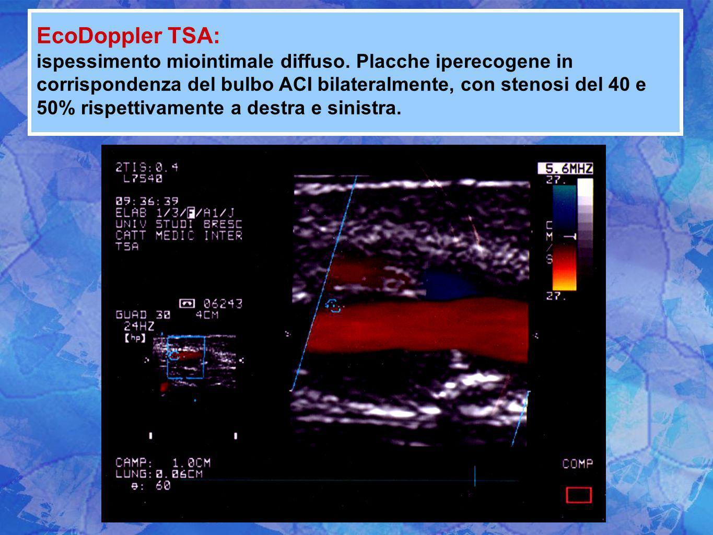EcoDoppler TSA: ispessimento miointimale diffuso. Placche iperecogene in corrispondenza del bulbo ACI bilateralmente, con stenosi del 40 e 50% rispett
