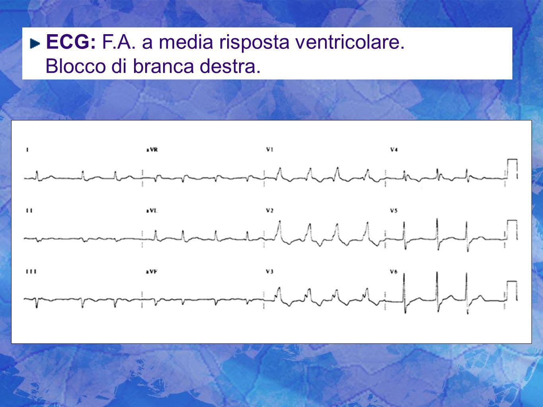 ECG: F.A. a media risposta ventricolare. Blocco di branca destra.