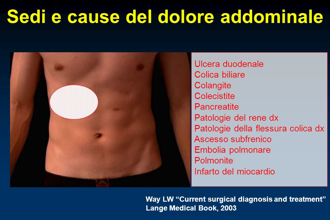 Sedi e cause del dolore addominale Way LW Current surgical diagnosis and treatment Lange Medical Book, 2003 Ulcera duodenale Colica biliare Colangite Colecistite Pancreatite Patologie del rene dx Patologie della flessura colica dx Ascesso subfrenico Embolia polmonare Polmonite Infarto del miocardio