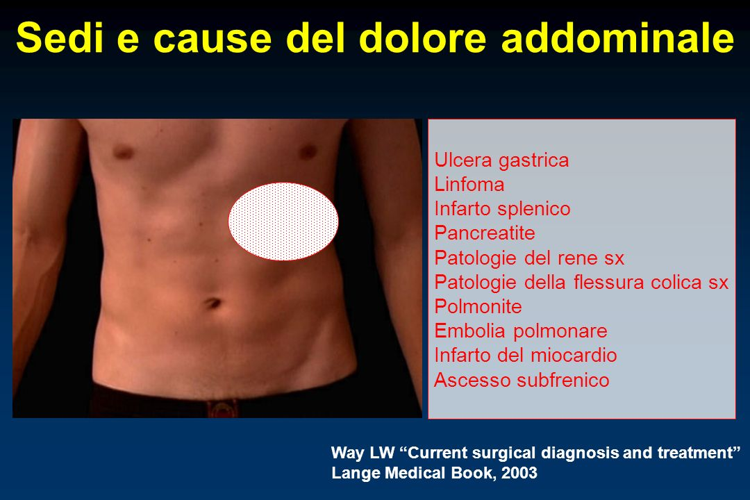 Sedi e cause del dolore addominale Ulcera gastrica Linfoma Infarto splenico Pancreatite Patologie del rene sx Patologie della flessura colica sx Polmonite Embolia polmonare Infarto del miocardio Ascesso subfrenico Way LW Current surgical diagnosis and treatment Lange Medical Book, 2003