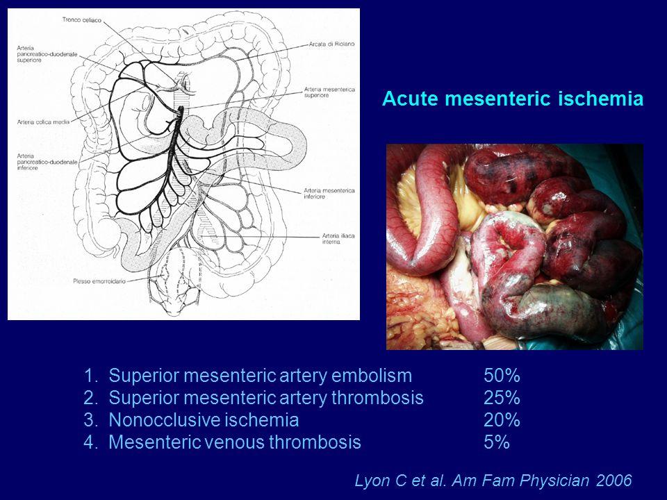 Acute mesenteric ischemia 1.Superior mesenteric artery embolism 50% 2.Superior mesenteric artery thrombosis 25% 3.Nonocclusive ischemia 20% 4.Mesenter