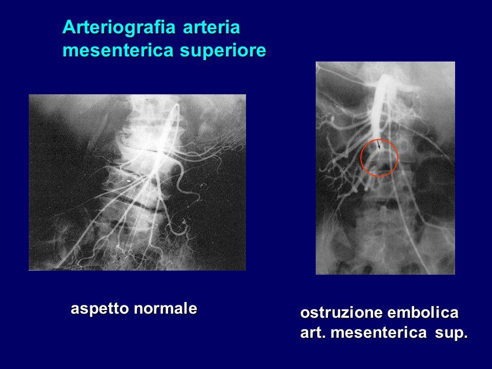 Arteriografia arteria mesenterica superiore aspetto normale ostruzione embolica art. mesenterica sup.
