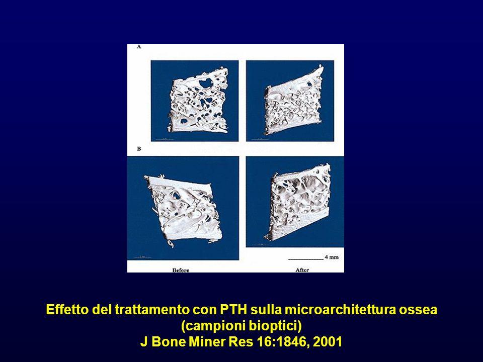 Effetto del trattamento con PTH sulla microarchitettura ossea (campioni bioptici) J Bone Miner Res 16:1846, 2001