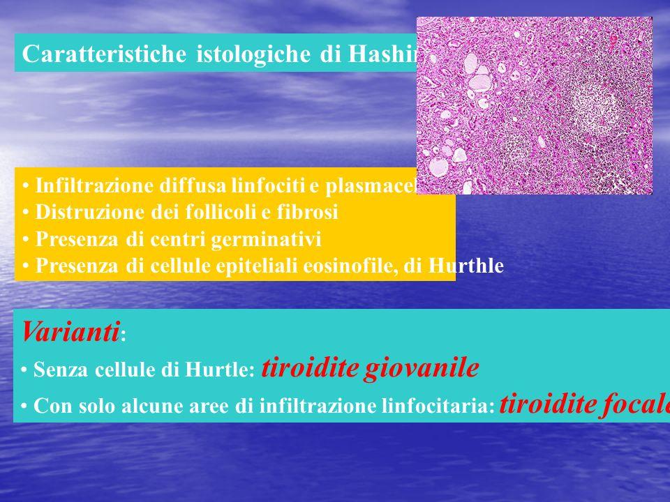 Caratteristiche istologiche di Hashimoto Infiltrazione diffusa linfociti e plasmacellule Distruzione dei follicoli e fibrosi Presenza di centri germin