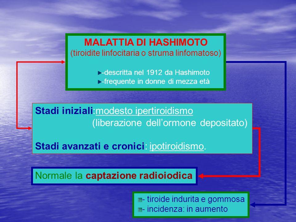 MALATTIA DI HASHIMOTO (tiroidite linfocitaria o struma linfomatoso) -descritta nel 1912 da Hashimoto -frequente in donne di mezza età Stadi iniziali:m